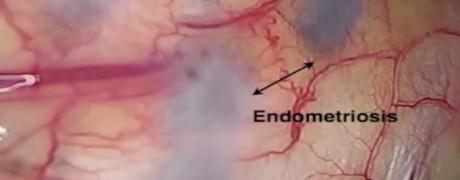 Pleural endometriosis implants as seen via VATS-